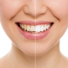 coconut oil teeth pulling instructions