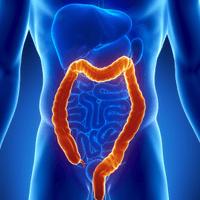 6 Easy Tricks to Reduce Your Risk of Colon Cancer