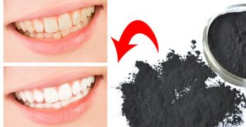 Whiten your teeth with charcoal