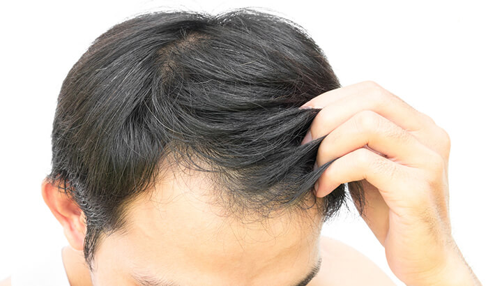hair loss: however it generally does not affect women until after, Skeleton