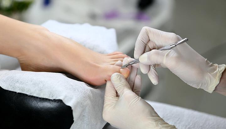 Ingrown toenail remedies cut cuticles