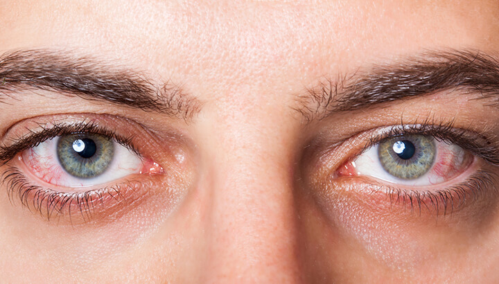 Red eyes are a sign of biological aging