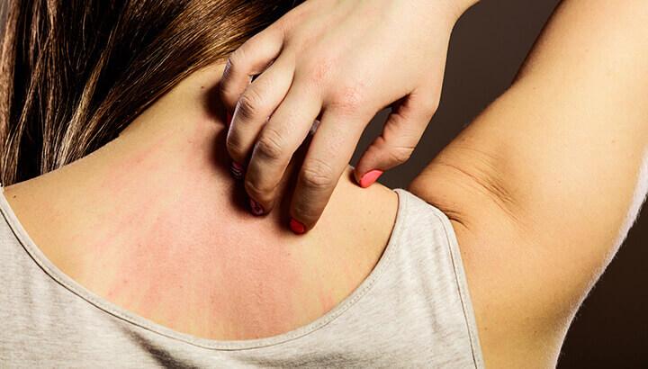 Manuka honey can help alleviate skin issues