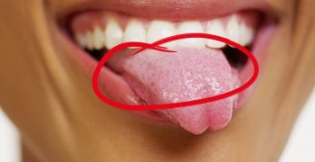 What your tongue scum is trying to tell you