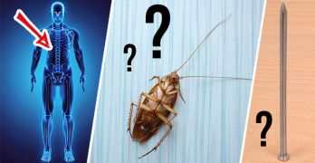 Strange things doctors have found in people's bodies